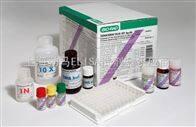 大鼠血管緊張素Ⅰ轉化酶試劑盒